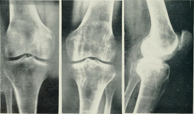 "Image from page 27 of ""Archives of physical medicine and rehabilitation"" (1920)"